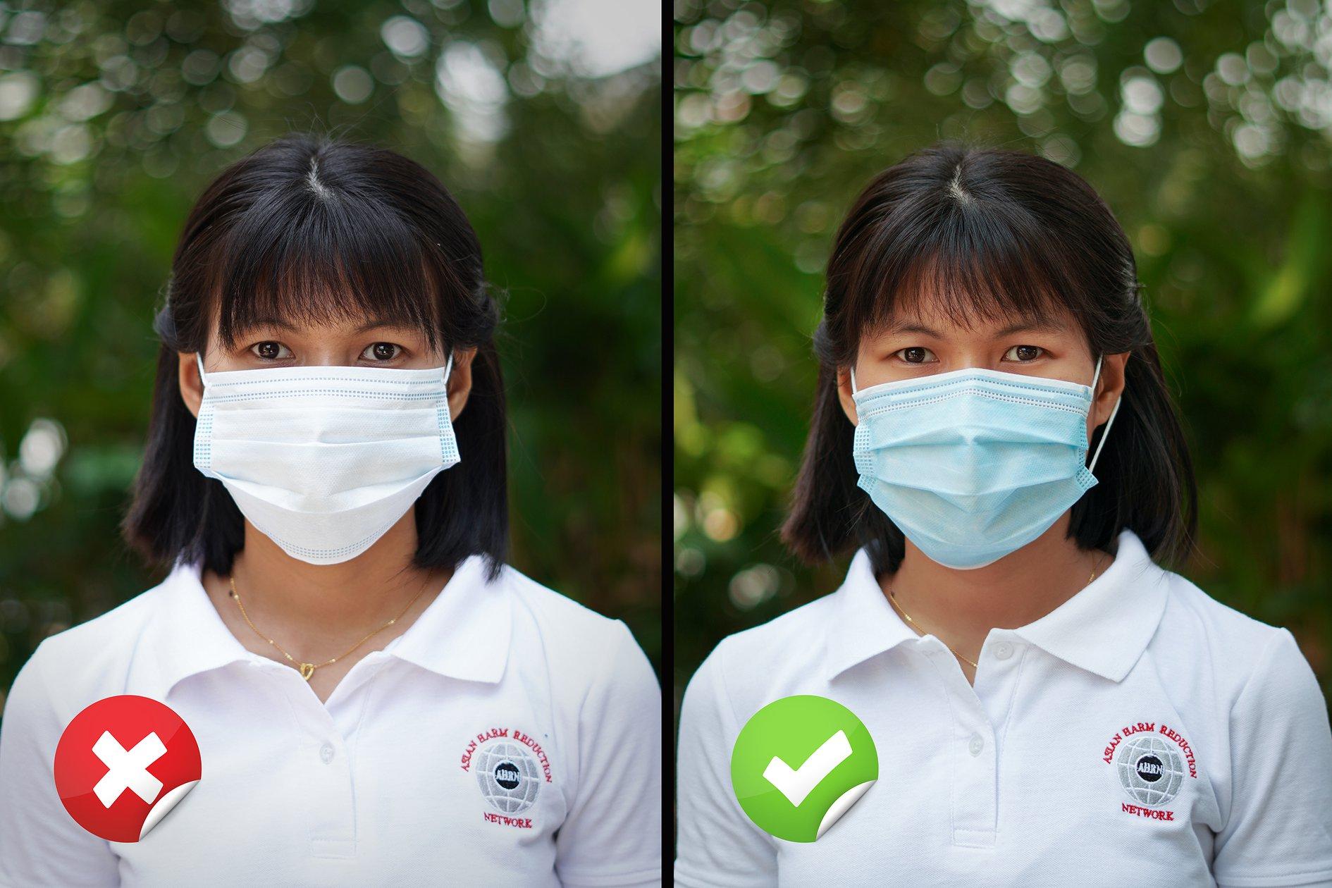 ပါးစပ်နှင့် နှာခေါင်းစည်းကို အဖြူရောင်အပြင်ဘက်ထုတ်၍ ပြောင်းပြန်တပ်ဆင်ခြင်းမပြုရ။ ပါးစပ်နှင့် နှာခေါင်းစည်း၏ အစိမ်းရောင် မျက်နှာပြင်ကို အပြင်ဘက်တွင်ထား၍ နှားခေါင်း၊ ပါးစပ်တို့ကို လုံခြုံအောင် တပ်ဆင်ပါ။